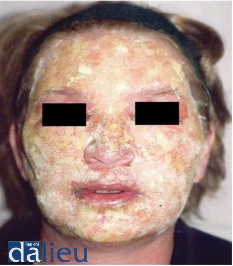 HÌNH 5.7 Da mặt được phủ bột bismuth subgallate trong 7 ngày