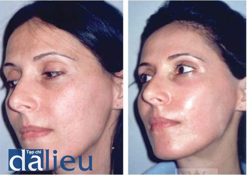 HÌNH 5.8 Bệnh nhân nữ 32 tuổi: (a) trước và (b) sau 4 tuần peel sâu (phương pháp Exoderm) phối hợp với mài da vật lí
