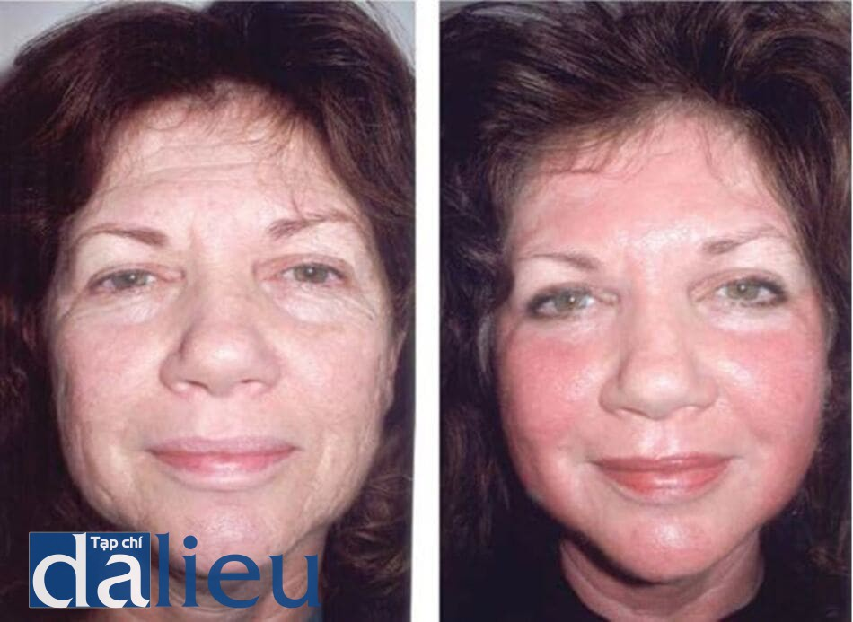 HÌNH 5.9 Bệnh nhân nữ da trắng 56 tuổi: (a) trước và (b) 2 tuần sau sau khi peel sâu kết hợp với mài da (dermabrasion).