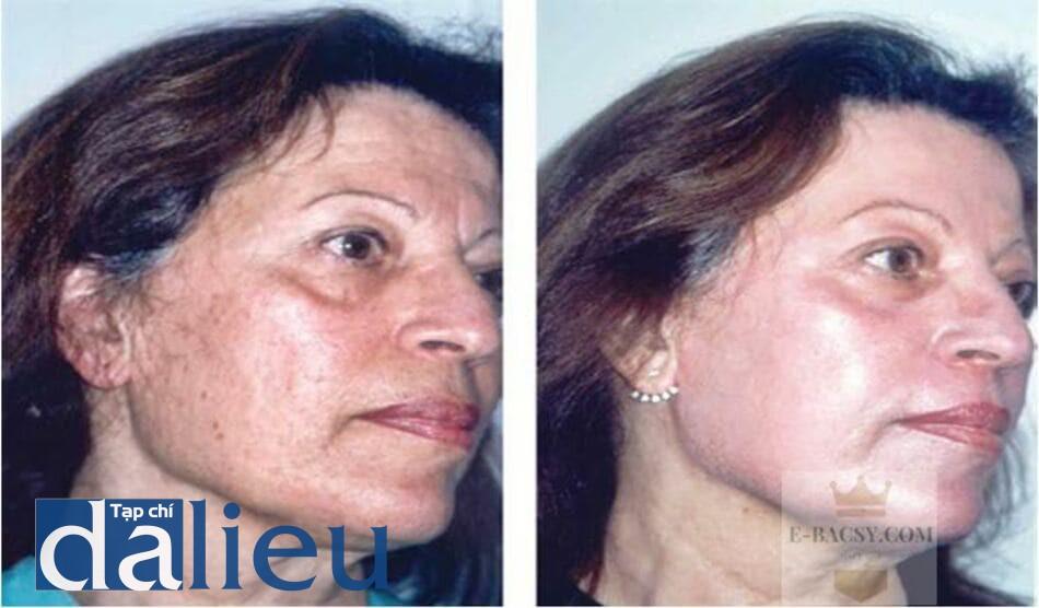 Hình 5.10 Bệnh nhân nữ 62 tuối có da típ 4 theo Fitzpatrick: (a) trước và (b)4 tuần sau peel sâu kết hợp với mài da (dermabrasion).