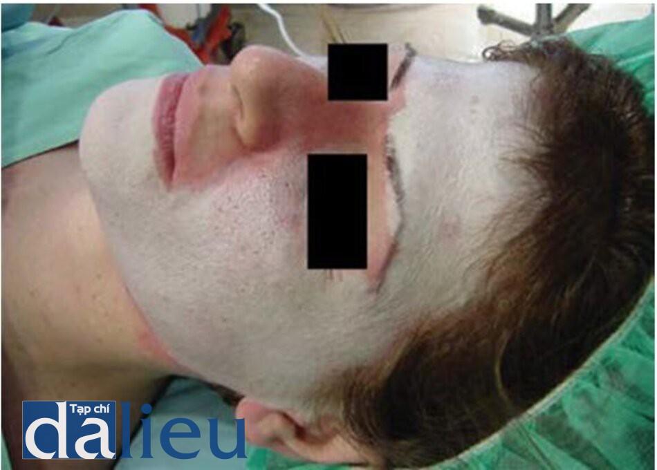 HÌNH 5.3 Khi bôi dung dịch phenol sẽ tạo ra lớp màu trắng ngà đến trắng xám ở trên da.