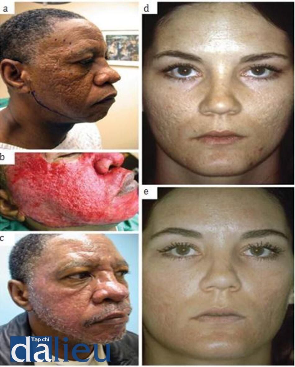 HÌNH 6.3 Mài da điều trị sẹo trứng cá (a-e). sẹo trứng cá nặng ở một người đàn ông Mỹ gốc Phi trước (a), ngay sau khi tiến hành dermabrasion (b) và 4 tuần sau dermabrasion (c). Sẹo trứng cá trung bình nặng ở một phụ nữ da trắng trước khi dermabrasion (d) và 12 tuần sau khi dermabrasion (e). (ảnh được sự cho phép của Harmon CB, Thiele JJ. In: Acne Scars. Tosti A, De Padova MP, Beer K, eds. London: Informa, 2009 [44]).