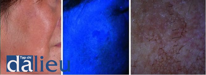 Hinh 6.4 (a) Nám hỗn hợp ở má phải. (b) Vùng nám có chỗ đậm màu có chỗ không màu hơn dưới ánh sáng đèn Wood. (c) Soi da bằng dermoscopy cho thấy cả hình ảnh tăng sắc tố dạng lưới bao quanh các lỗ chân lông và hình ảnh tăng sắc tố giả lưới màu nâu đậm đến xanh.