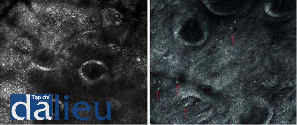 Hình 6.7 Hình ảnh nám hỗn hợp thông qua hình ảnh của RCM. (a) Hình ảnh RCM khúc xạ mạnh các tế bào sừng với nhiều đốm sáng nhỏ (melanin, túi melanosome) phân bố bên trong lớp sừng và lớp đáy. (b) Rải rác các tế bào sáng ở lớp bì (mũi tên màu đỏ).
