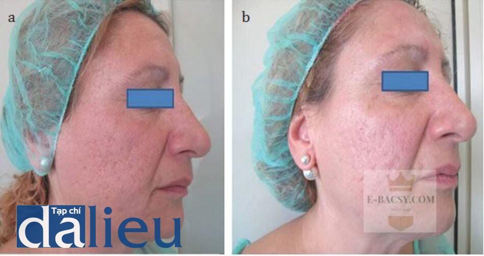 HÌNH 9.2 (a) trước và (b) ngay sau điều trị bằng filler HA.