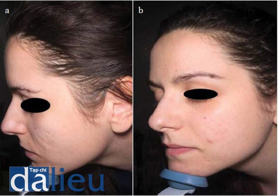 HÌNH 9.3 (a) trước và (b) sau điều trị bằng filler HA