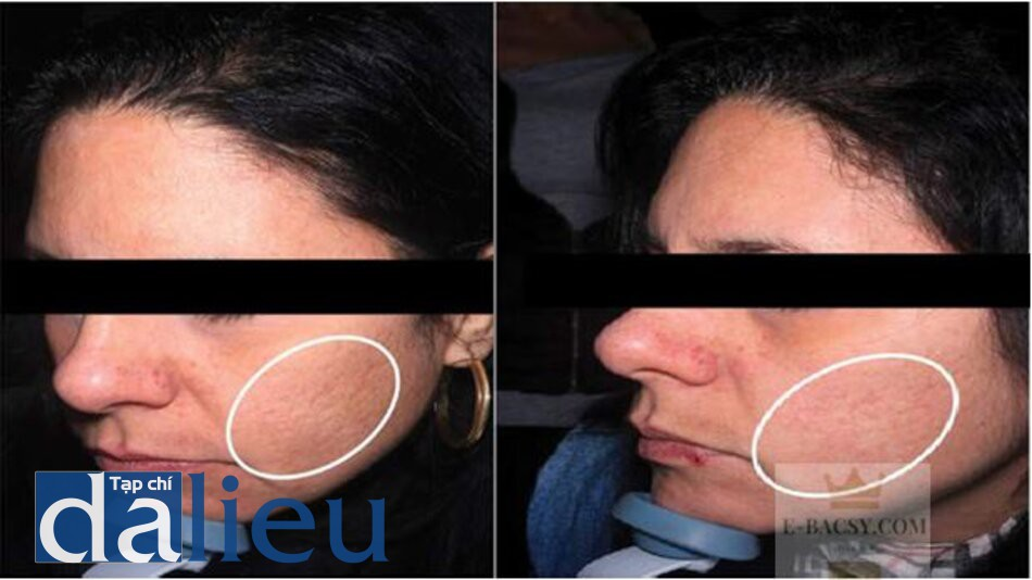 HÌNH 9.4 (a) trước và (b) sau điều trị bằng filler HA