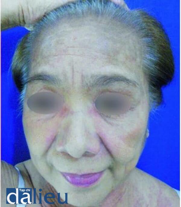 Hình 9.1 dát tăng sắc tố sau viêm ở một phụ nữ lớn tuổi người Philippin bị viêm da cơ (Ảnh của Viện Nghiên Cứu Y Học Nhiệt Đới, Philippine)