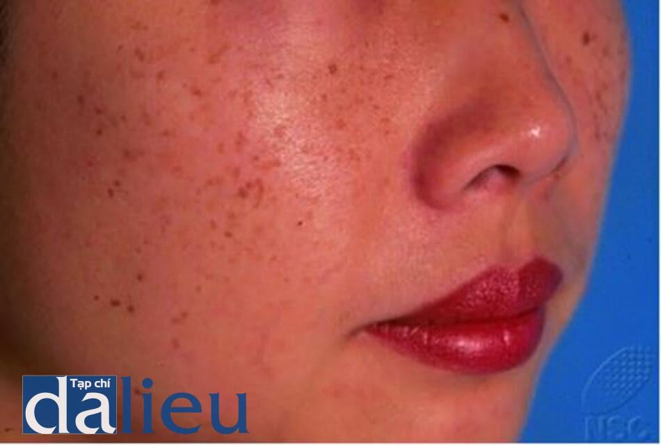 Hình 9.9 Các dát nhỏ màu nâu với nhiều tone màu khác nhau phân bố rải rác ở hai bên má của một phụ nữ Á châu (Ảnh của Viện Da Liễu Quốc Gia, Singapore)