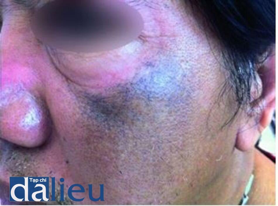 Hình 9.2 Tăng sắc tố màu đen- xanh nhạt ở vùng má của một phụ nữ Philippin sau khi sử dụng mỹ phẩm chứa hydroquinone kéo dài (Ảnh của Viện Nghiên Cứu Y Học Nhiệt Đới, Philippine