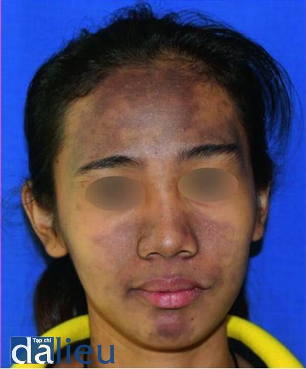 Hình 9.6 (b) dát tăng sắc tố ở vùng mặt giữa của một phụ nữ Philippin trẻ tuổi, kết quả mô bệnh học xác nhận là tổn thương của liken phẳng ánh sáng (Ảnh của Viện Nghiên Cứu Y Học Nhiệt Đới, Philippine)