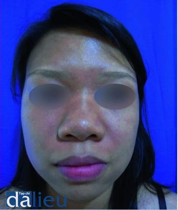 Hình 9.7 Tăng sắc tố màu nâu- xám tro ở mặt của một phụ nữ Philippin trẻ tuổi (Ảnh của Viện Nghiên Cứu Y Học Nhiệt Đới, Philippine)