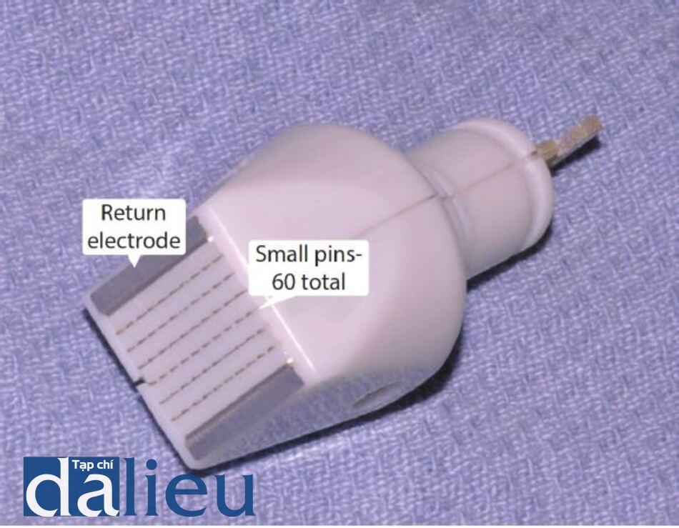Hình 12.10 Thiết bị RF phân đoạn (Fractora). Đầu được đặt trên da, và máy truyền dòng điện tần số vô tuyến đến mỗi chân trong số 60 chân.