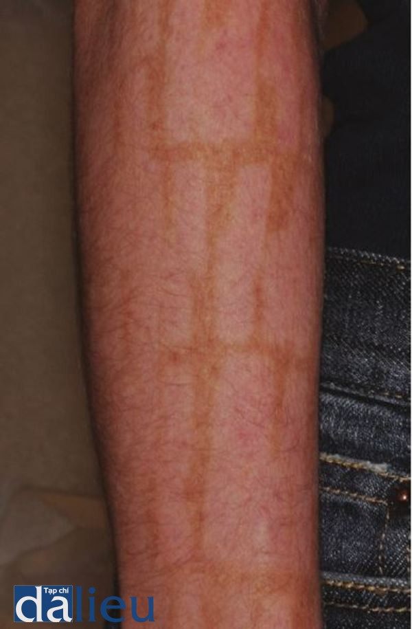 Hình 12.11 Lưu ý sự giảm sắc tố sau khí điều trị bồng ánh sáng xung cường độ cao. Loại tác dụng phụ này thường sẽ hết trong vòng 6 đến 12 tháng.
