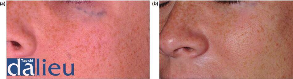 Hình 12.13 (a) Hình xăm chấn thương trước khi điều trị. (b) Bệnh nhân sau một năm điều trị bằng laser Q-switched 1,064-nm.
