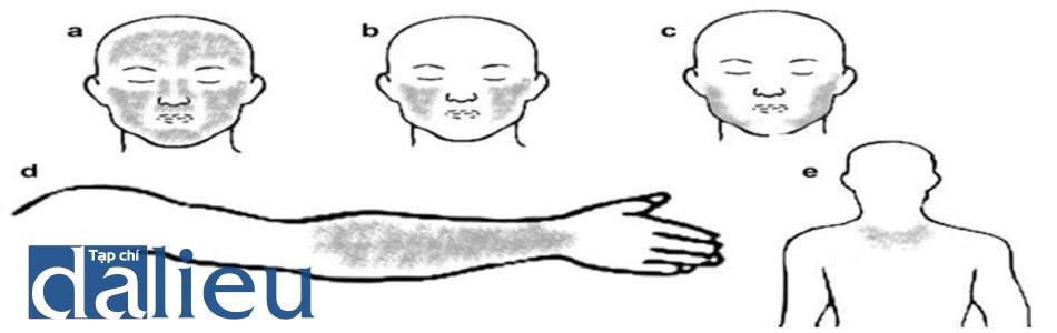 Hình 5.1 (a-e) vị trí phân bố của nám: trung tâm mặt (a), vùng má (b) vùng quai hàm (c), vùng mặt duỗi cánh tay (d), vùng ngực trên (e).