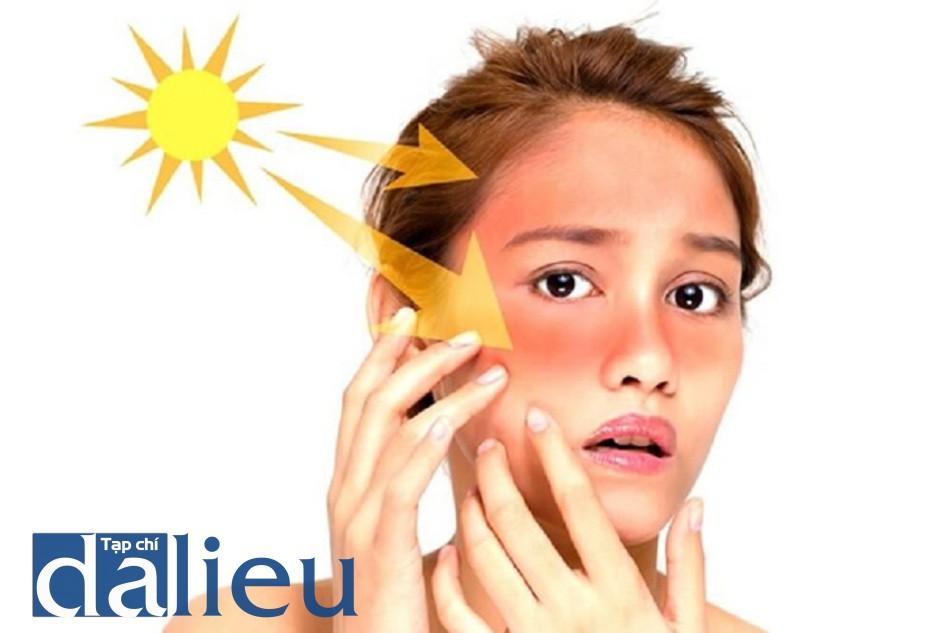 Tiếp xúc trực tiếp với ánh sáng mặt trời gây nám da