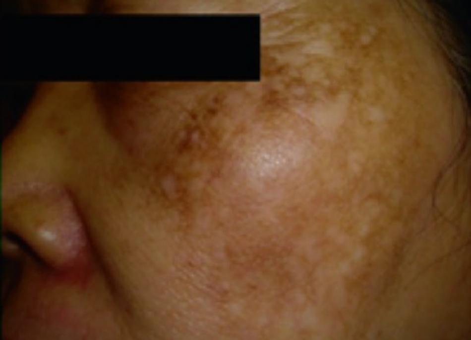Hình 16.5 Giảm sắc tố dạng đốm sau laser toning điều trị nám bằng laser QS Nd: YAG 1064-nm quá mức và quá thường xuyên (ảnh từ National Skin Centre, Singapore)