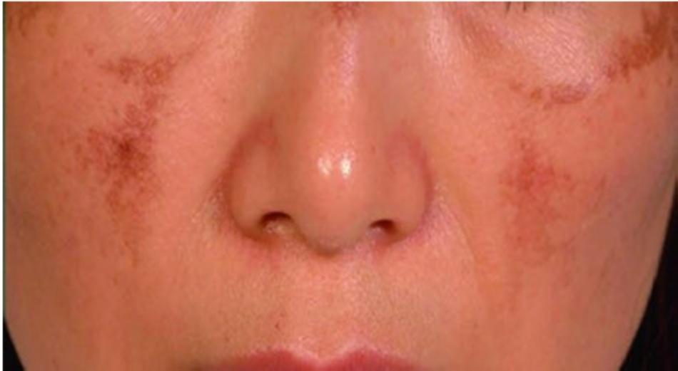 Hình 16.1 PIH 2 tháng sau khi điều trị nám bằng laser QS Nd: YAG 1064-nm. Bệnh nhân được điều trị bằng laser QS Nd: YAG 1064-nm, độ rộng xung (pulsed duration) 4ns, mật độ năng lượng (fluence) 8 J/cm2 (Ảnh từ National Skin Centre, Singapore)