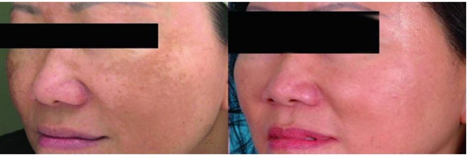 Hình 16.2 Nám cải thiện rõ sau 3 lần điều trị cách nhau 1 tháng bằng laser fractional không xâm lấn. Tái phát 3 tháng sau khi ngưng điều trị (ảnh từ National Skin Centre, Singapore)