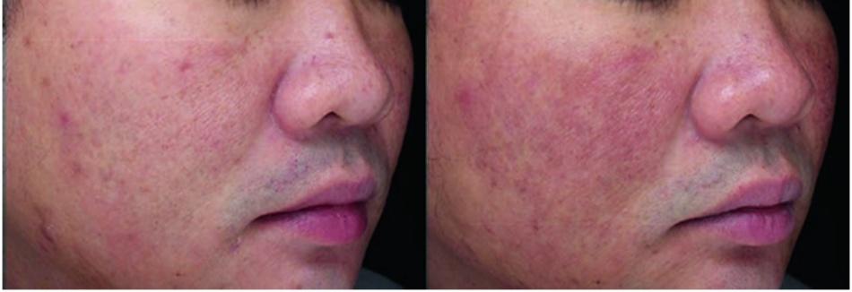 Hình 16.3) sau điều trị laser tái tạo bề mặt vi điểm người châu Á cao từ 10 đến 90% [12].