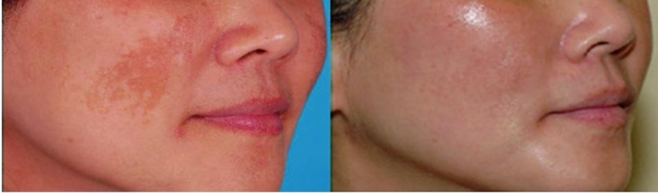 Hình 16.4 Nám cải thiện tốt sau 8 lần điều trị lasertoning bằnglaser QSNd: YAG 1064-nm được thực hiện cách nhau mỗi 2 tuần. Mậtđộ năng lượnglà 2.5 J/cm2, spotsize 6, độ rộng xung 5 ns. Tái phát sau 3 tháng ngưng điều trị (ảnh từ National Skin Centre, Singapore).