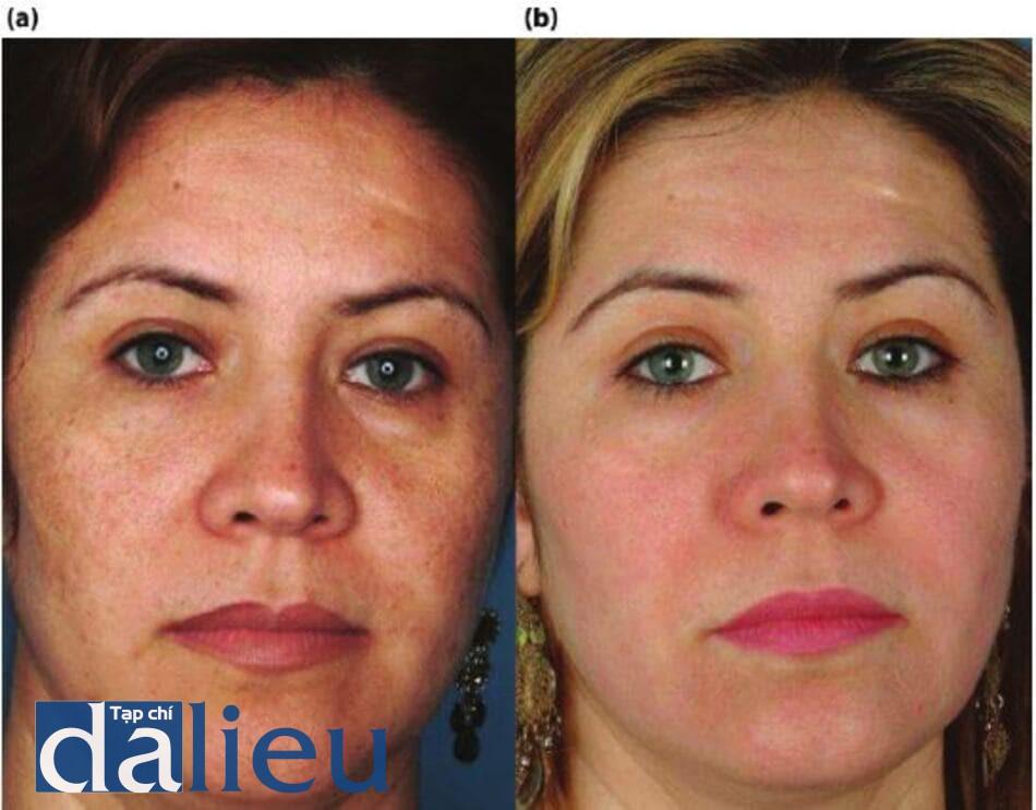 Hình 14.1: a) Bệnh nhân có làn da được phân loại là da trắng. Cô ấy được chẩn đoán là bị nhiễm sắc thể sớm và đổi màu không đặc hiệu, (b) Sáu tháng sau, bệnh nhân đã được điều trị bằng một chương trình phi y khoa, không HQ.