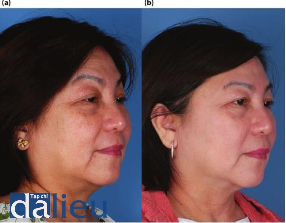 Hình 14.3: a)Bệnh nhân được phân loại là da lệch (trung bình), dày và khô. Cô được chẩn đoán là có những thay đổi lão hóa nhẹ, ảnh hưởng ánh sáng và đổi màu. (b) Một năm sau. Bệnh nhân được điều trị trong 6 tháng với một chương trình ZOSH, trong đó cô ấy có một lần zo Retinol stimulation Peel. Bức ảnh cho thấy bệnh nhân trên cùng một chương trình ZOSH trong thời gian điều trị một năm.