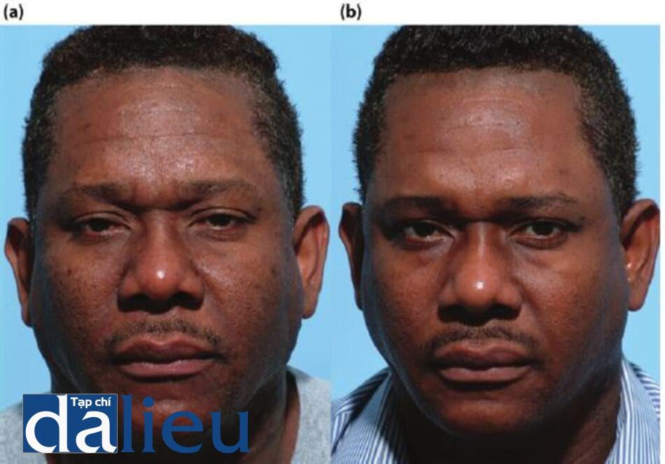 Hình 14.5 a) Bệnh nhân có da được phân loại là đen, dày và rất nhờn. Anh ta được chẩn đoán là có lỗ chân lông to, kết cấu thô ráp, tăng sắc tố sau viêm và vi khuẩn viêm nang lông giả. (b) Sáu tháng sau. Bệnh nhân được điều trị bằng ZOSH, tập trung vào ổn định biểu bì và tế bào hắc tố vồ giảm bã nhờn (Cebatrol tại chỗ từ ZOMD vồ isotretinoin toàn thân, 20 mg/ ngày trong 5 tháng với ba lần điều trị với zo Retinol stimulation Peel.