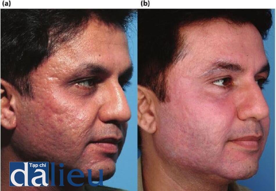 Hình 14.6; (a) Bệnh nhân có da được phân loại là da phức tạp, dày và nhờn. Anh ấy được chẩn đoán là có sẹo mụn sâu (có thể co giãn và không thể thay đổi được), (b) Một năm sau. Bệnh nhân được điều trị bằng chương trình ZOMD và được cắt lớp vỏ có kiểm soát độ sâu được thiết kế bằng zo ở độ sâu trung bình. Sáu tháng sau, anh được điều trị bằng laser phân doạn C02. Da của anh ấy đã được điều trị bằng ZOMD (gốc hydroquinone) trong 5 tháng trước và sau mỗi liệu trình. Các thủ tục được thực hiện sau 6 tuần của chương trình ZOMD. Anh ta được cung cấp isotretinoin, 20 mg mỗi ngày trong 5 tháng sau liệu trình thứ hai.