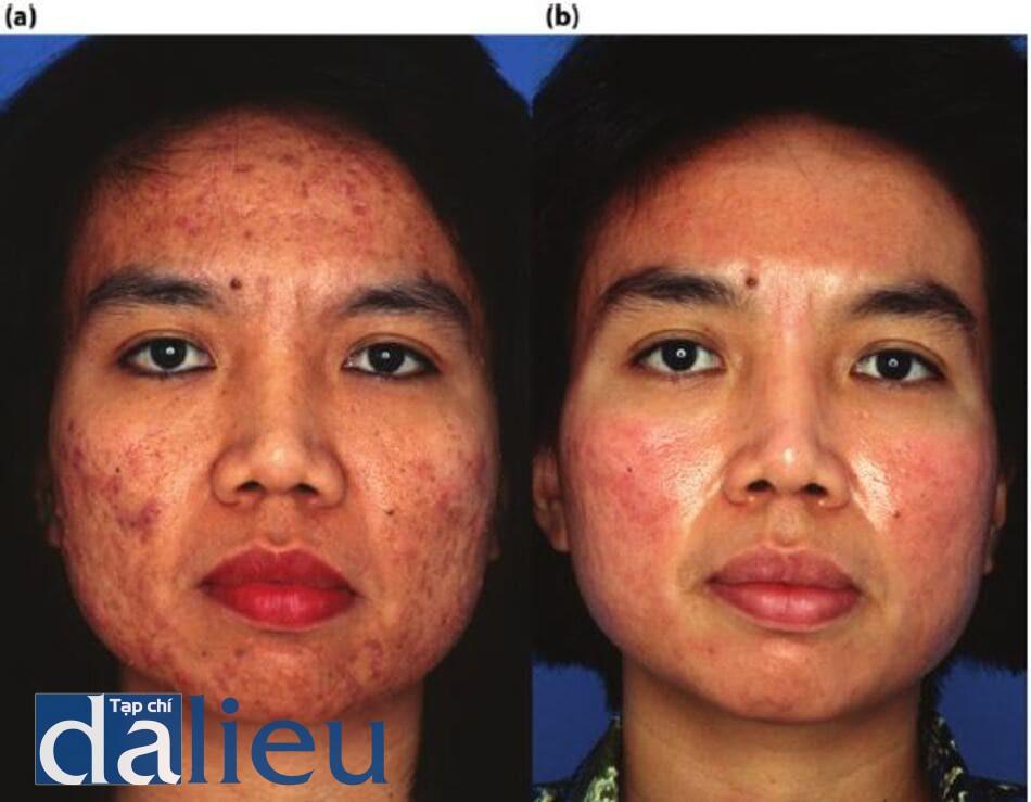 Hình 14.7: a) Bệnh nhân có làn da được phân loại là da lệch (trung bình), dày và nhờn. Cô được chẩn đoán là bị mụn nang nặng, chứng tăng sắc tố sau viêm và sẹo mụn. Cô không phù hợp sử dụng liệu trình với các phương pháp điều trị truyền thống do nhiều bác sĩ da liễu (thuốc bôi và thuốc kháng sinh) thực hiện, (b) Mười tám tuần sau. Bệnh nhân được điều trị bồng ZOMD dựa trên HQ, hydroquinone và benzoyl peroxide. Cô ấy đã điều chỉnh và kích thích tích cực và sử dụng isotretinoin trong 5 tháng. Cô ấy hiện đang tham gia chương trình bảo trì ZOSH.