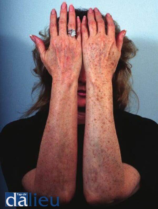 Bệnh nhân có da trắng nguyên bản cho thấy sự tổn thương da của ánh sáng ở cánh tay. Cánh tay phải của cô đã được điều trị bằng Invisapeel