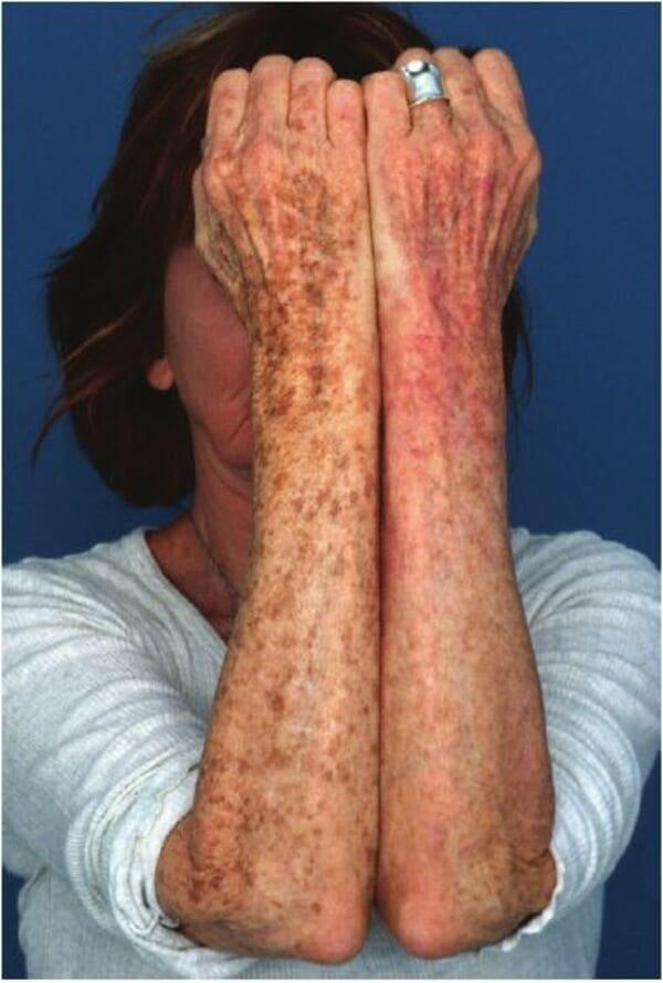 Bệnh nhân bị tổn thương da do ánh sáng và vết sần trên cánh tay. Cánh tay trái của bệnh nhân đã được điều trị bằng Invisapeel