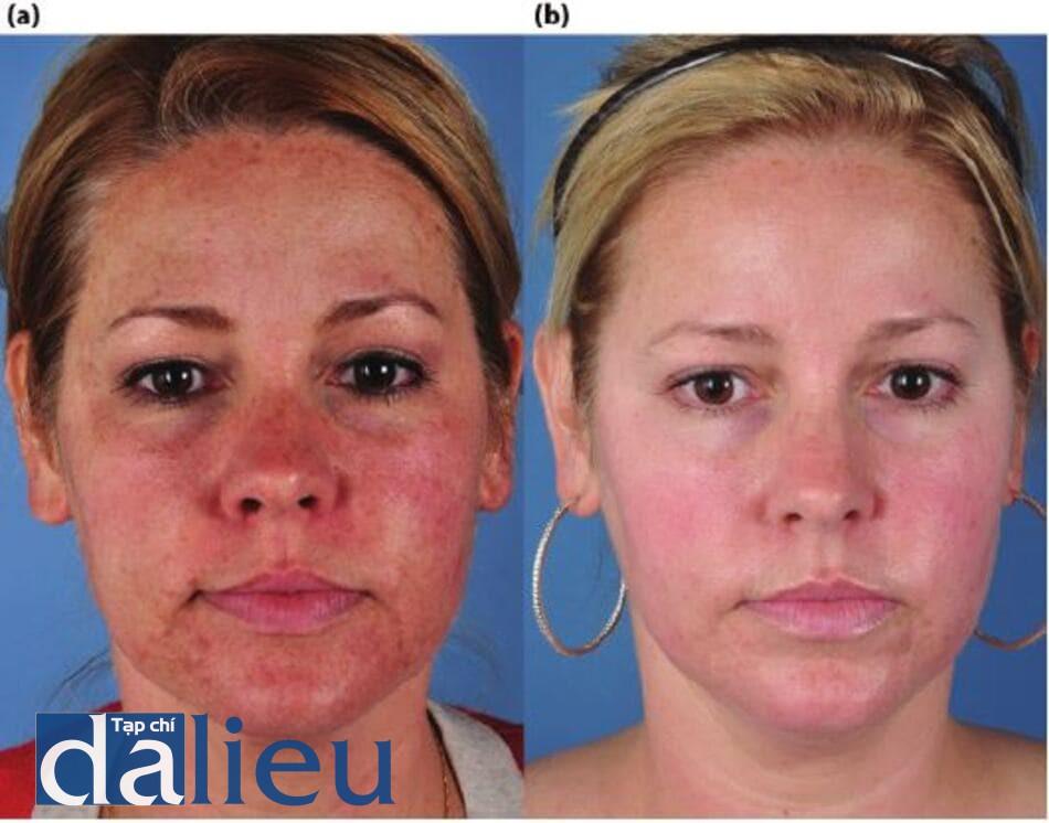 Hình 14.8: a) Bệnh nhân có làn da được phân loại là da trắng, dày vừa và rất nhờn. Cô được chẩn đoán là mắc bệnh rosacea, da sần sùi và tăng sắc tố sau viêm, (b) Cô ấy đã được điều trị bằng chương trình ZOMD dựa trên HQ và isotretinoin, 20 mg/ ngày trong 5 tháng. Invisapeel đã được áp dụng để tăng tốc và cải thiện kết quả.