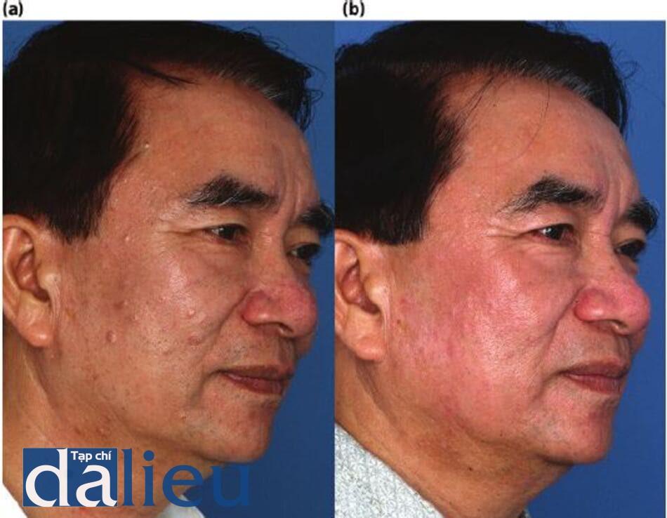 Hình 14.9: a) Bệnh nhân được phân loại là da lệch (trung bình) Châu Á, dày và rất nhờn. (Anh ấy được chẩn đoán là mắc bệnh rosacea, tăng sản tuyến bã nhờn và viêm da tiết bã. (B) Một năm sau. Anh ấy được điều trị trong 5 tháng với chương trình ZOMD không dựa trên HQ và sử dụng isotretinoin, 20 mg / ngày. Hút diện được thực hiện để điều trị sự tăng sản tuyến bã nhờn với một bước lột da 3 bước zo.