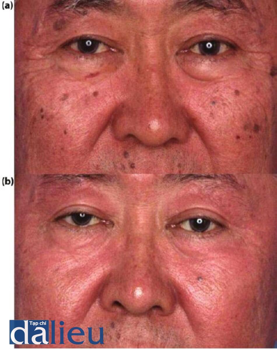 Hình 14.11: a)Bệnh nhân được phân loại là da ngirờí châu Á lệch lạc (trung bình). Anh ta được chẩn đoán là mắc bệnh viêm da tiết bã nhờn, bệnh mụn thịt, bệnh da liễu papulosa nigra (DPN) và chứng tăng sắc tố sau viêm, (b) Sáu tháng sau vào tuần thứ 6 của chương trình zo Medical của anh ấy, một phiên điều trị siêu ghi âm đã dược thực hiện trên các DPN. Vào tuần thứ 12, bệnh nhân đã trải qua quá trình lột da sâu có kiểm sodtzo đến lớp hạ bì nhú. Anh ấy đã theo cùng chương trình ZOMD trong 6 tuần nữa và sau đó được bắt đầu sử dụng liệu pháp điều trị ZOSH.
