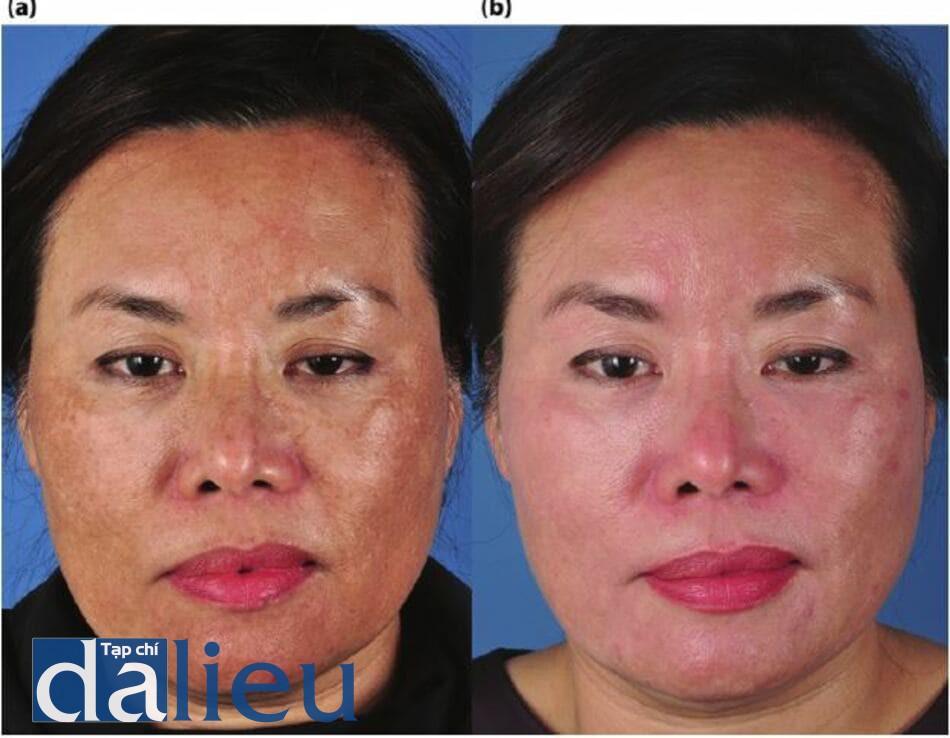 Bệnh nhân chẩn đoán là bị nám da và tăng sắc tố sau viêm và sự phục hồi sau 8 tháng