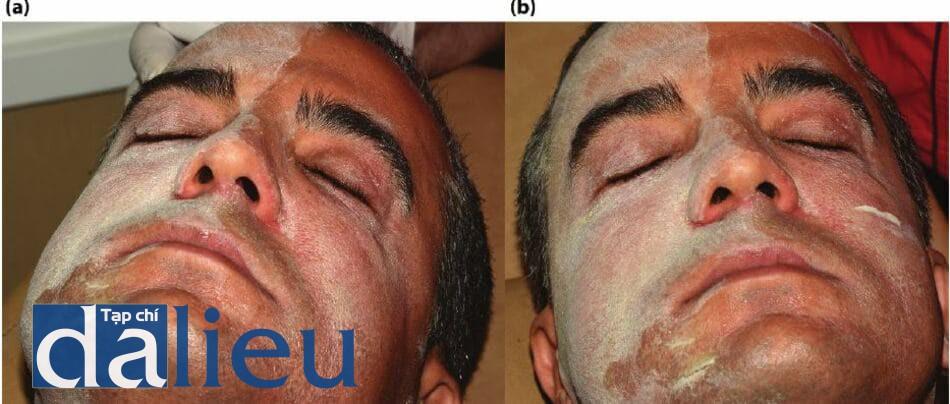 Mặt của bệnh nhân trước và sau khi thoa dung dịch hỗn hợp axit lột da 3 bước zo