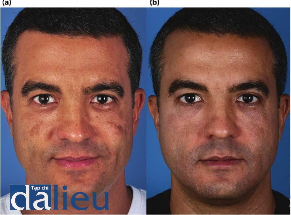 Bệnh nhân được chẩn đoán là mắc chứng loạn sắc tố da và tăng sắc tố sau viêm do nhạy cảm với ánh sáng và sự phục hồi sau 5 tháng