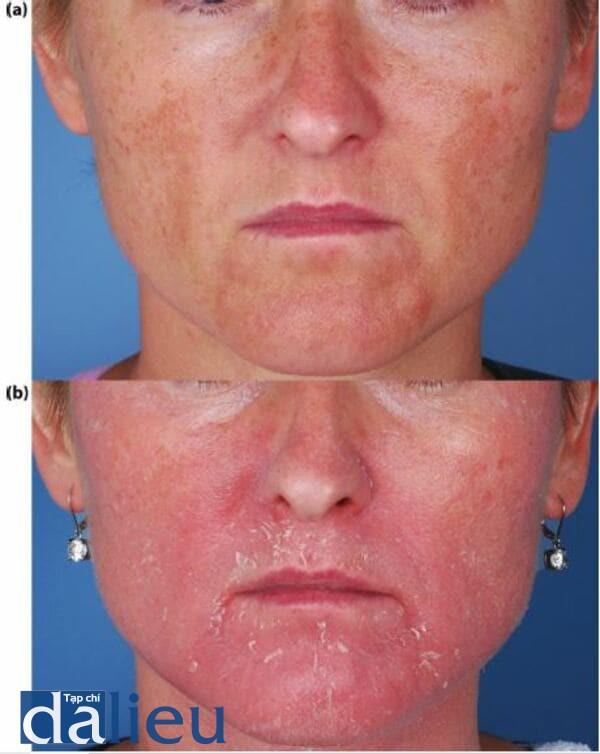 Bệnh nhân chẩn đoán là mắc bệnh tổn thương do ánh nắng và bệnh trứng cá đỏ và sự thay đổi qua 6 tuần