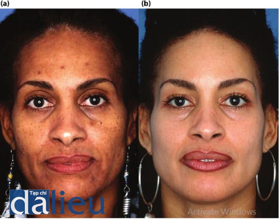 Bệnh nhân chẩn đoán là bị mụn trứng cá, bệnh trứng cá đỏ và chứng tăng sắc tố da sau viêm và sự thay đổi qua 6 tháng