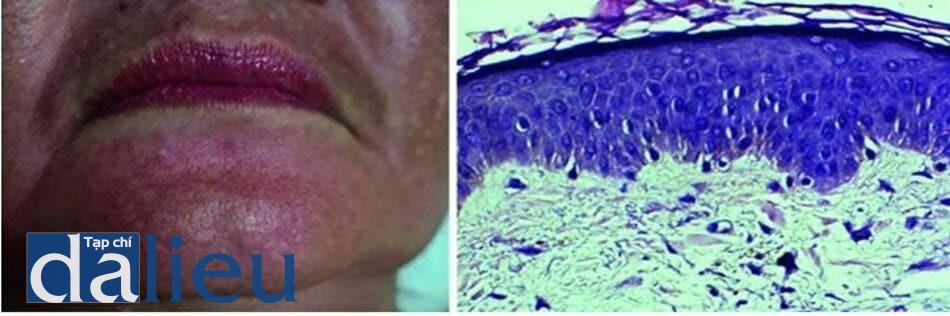 Hình 7.1 Hình ành lâm sàng của nám nơi được sinh thiết (a) và kết quả mô học (b) cho thấy melanocyte ở thượng bì có kích thước lớn hơn và đi kèm với thoái hóa mô đàn hồi, xâm nhiễm tế bào lympho, và một số đại thực bào mang sắc tố ở lớp bì (H&E, x400)