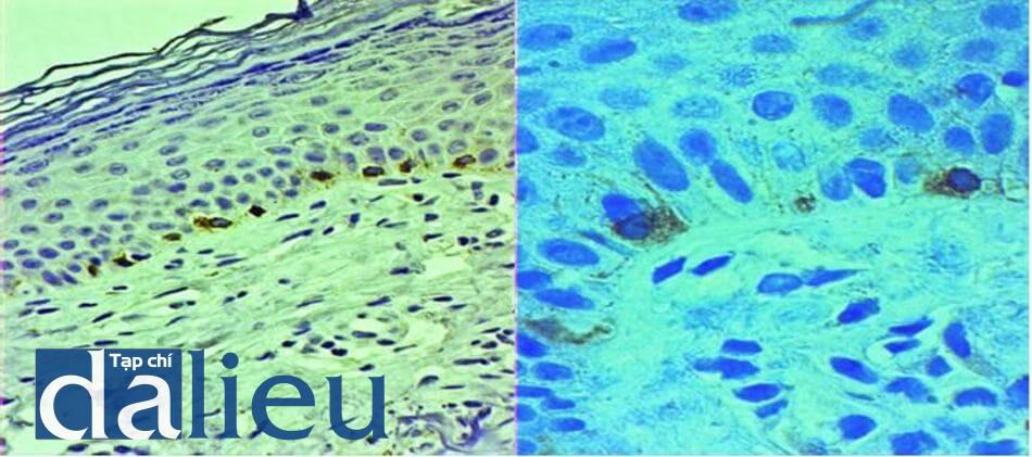 Hình 7.3 Nhuộm hóa mô miễn dịch với maker Melan-A có thể thấy được tế bào melanocytes (mũi tên) bắt màu đậm hơn với kích thước lớn hơn ở lớp tế bào đáy (a), H&E x1000 (b)