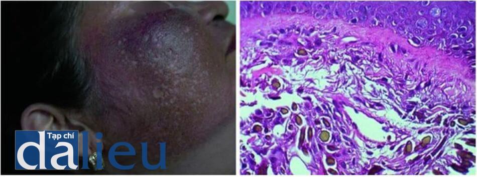 Hình 7.4 Hình ảnh ochronosis do hydroquinone ở hai bệnh nhân Philippin (a) và kết quả mô bệnh học (b) với sự lắng đọng nhiều sợi có màu nâu vàng ở lớp bì kèm theo thoái hóa mô đàn hồi, xâm nhiễm bạch cầu lympho, và đại thực bào mang sắc tố ở lớp bì (H&E, x400).