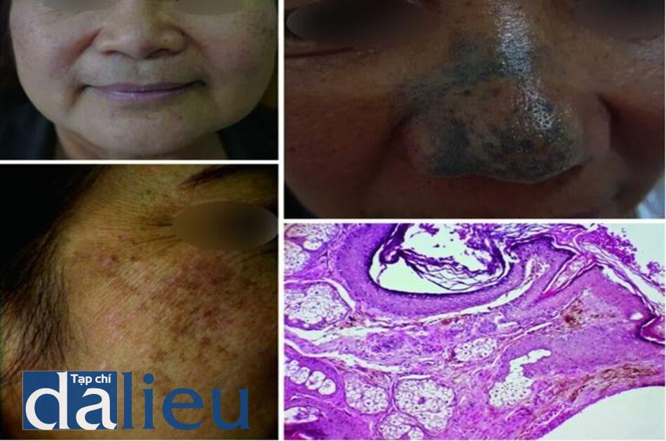 Hình 7.5 hình ảnh lâm sàng của bớt Hori (a, b), bớt Ota mắc phải (c), và kết quả mô học (d) của các tế bào melanocyte hình con quay, bắt màu mạnh ở lớp bì (H&E x100)