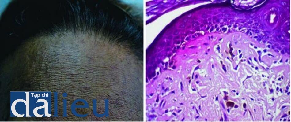 Hình 7.8 Tăng sắc tố dạng lưới ở một bệnh nhân Philippine do dị ứng mỹ phẩm (a) và mô học (b) cho thấy hình ảnh thay đổi không bào ở lớp đáy, tích lũy sắc tố và xâm nhiễm bạch cầu lympho ở lớp bì