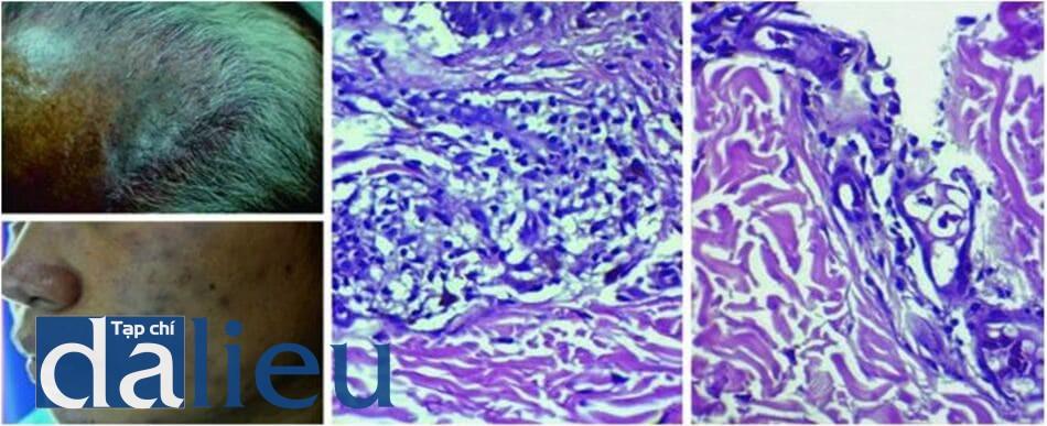 Hình 7.9 Dát tăng sắc tố ở hai bệnh nhân bị bệnh Hansen sau khi điều trị bằng minocycline (a, b) và hình ảnh mô bệnh học xuất hiện các hạt màu nâu-đen quanh mạch máu (c) và cấu trúc phụ (d)