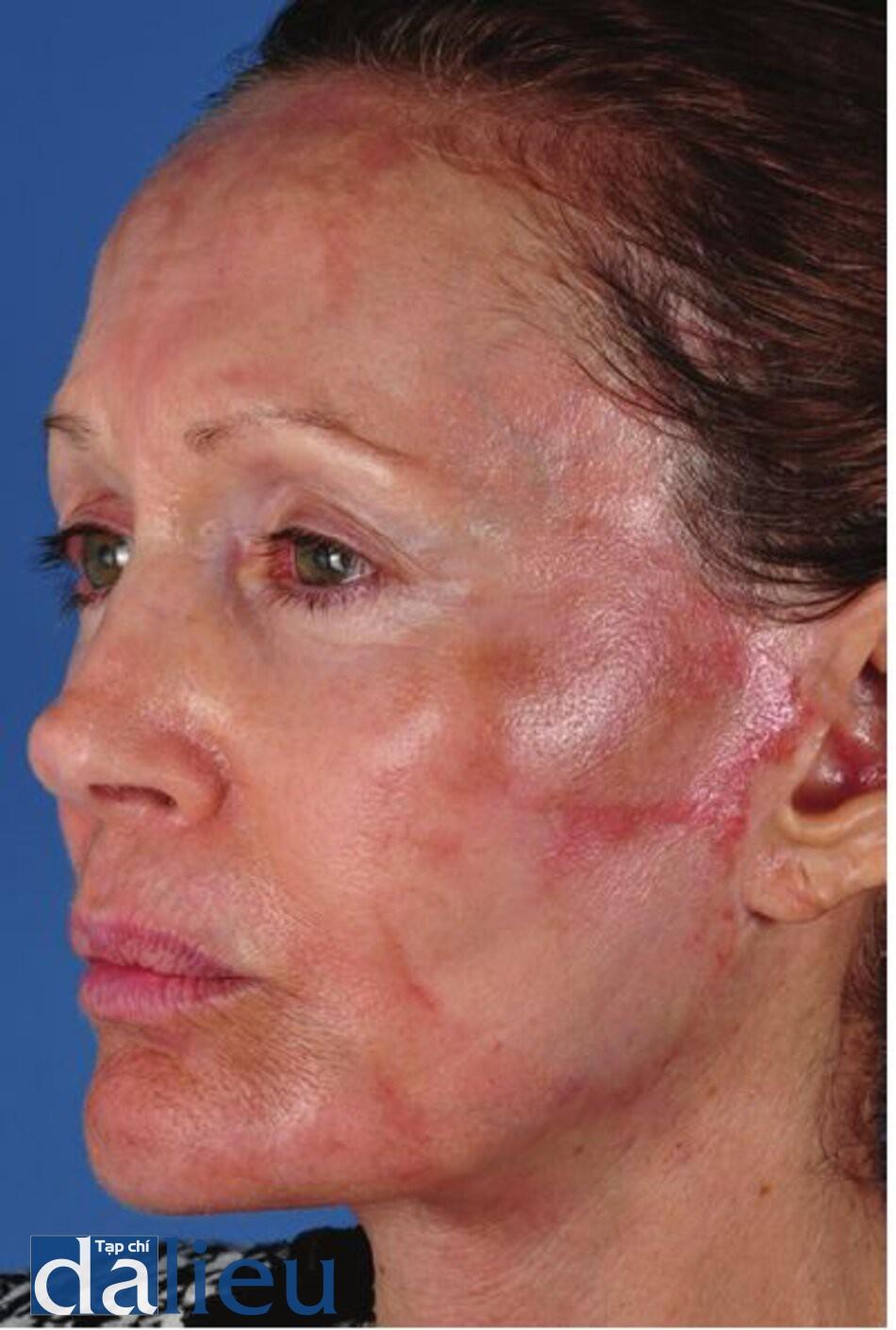 Hình 11.7 Một bệnh nhân 10 ngày sau khi lột da có kiểm soát độ sâu của zo đến lớp hạ bì dạng lưới tức thì. Cô ấy lột bỏ bề mặt da của mình 4 ngày sau khi lột. Tiếp xúc quá nhiều với nước trong quá trình tắm khiến da bị bong tróc sớm bị tách rời. Chú ý tổng sắc tố sau viêm và các biến chứng trong các khu vực lành bệnh.