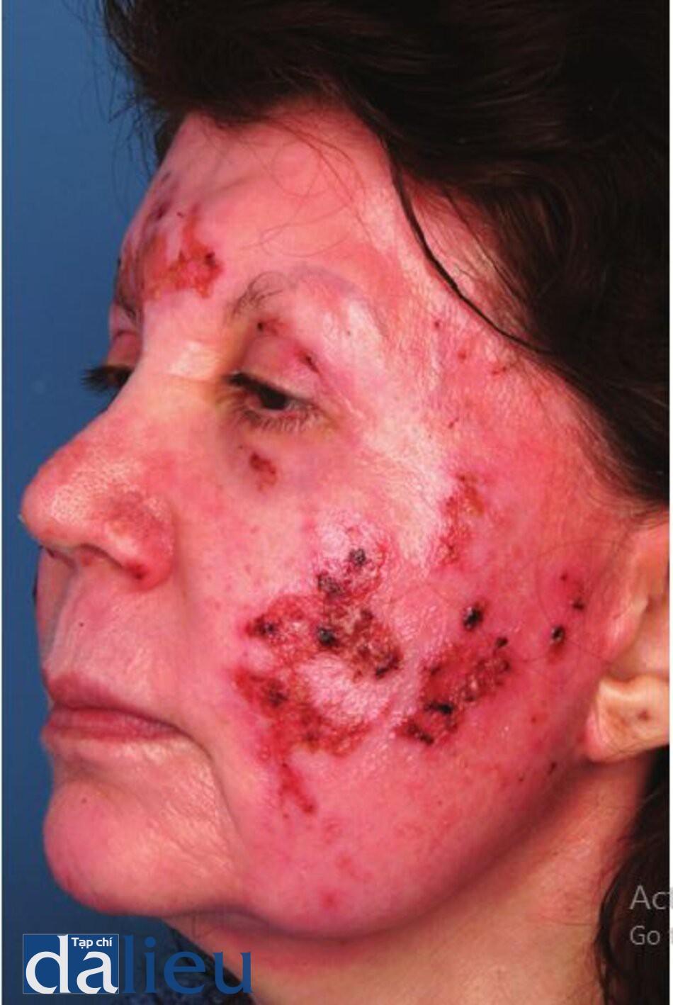 Hình 11.8 Một bệnh nhân bị đóng vảy và nứt do trầy xước 8 ngày sau khi lột da bằng axit trichloroacetic.