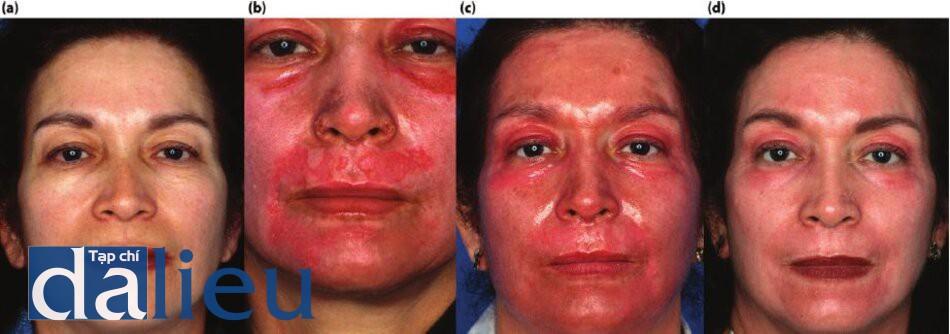Hình 11.9 (a) Một bệnh nhân có làn da được phân loại là trắng lệch màu, dày vừa và nhờn, (b) Bệnh nhân 10 ngày sau khi thực hiện lột da bằng axit trichloroacetic đến lớp hạ bì dạng lưới tức thì. Bệnh nhân lột bò da bằng cách rửa vờ kỳ mạnh, (cho) Bệnh nhân 10 ngày sau 5 ngày bôi steroid fluor và phục hồi sức khỏe da tích cực. (d) Bệnh nhờn 1 năm sau. Lưu ý kết cấu da được cải thiện vờ không để lại sẹo ở các vùng da bị mụn.